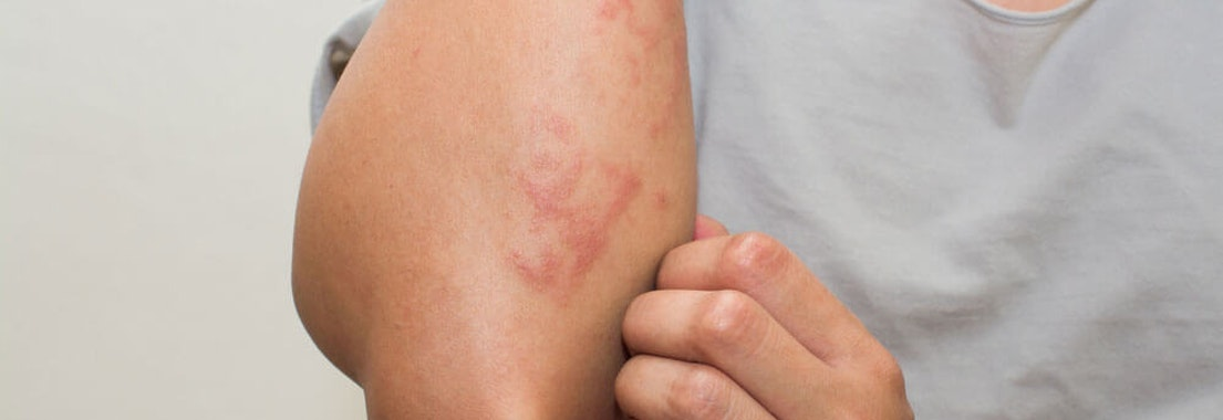 North Pacific Dermatology patient with a rash Telling the Difference Between Rashes and Rosacea