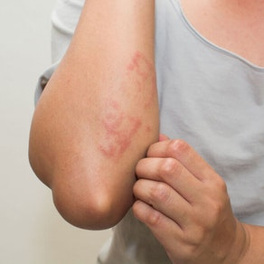 Should You See a Dermatologist About Rash Treatment?