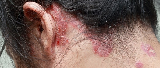 Woman with psoriasis on her neck From Severe to Mild Psoriasis, We Can Help You