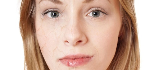 Girl with dehydrated skin 4 Simple Ways to Tell if Your Skin is Dehydrated