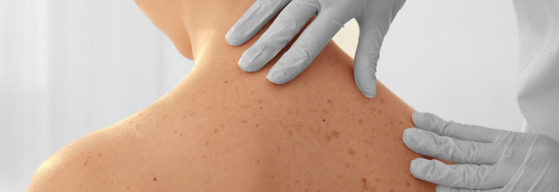 Doctor checking woman's back Skin Cancer Awareness: Is it Time for Another Skin Cancer Screening?