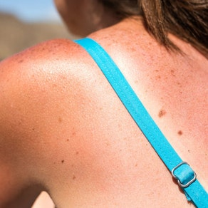 Skin Cancer Awareness Month: Are There Risk Factors for Skin Cancer?