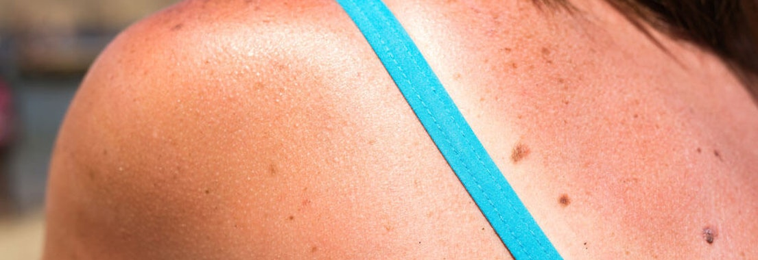 North Pacific Dermatology identifying skin cancer risks Skin Cancer Awareness Month: Are There Risk Factors for Skin Cancer?