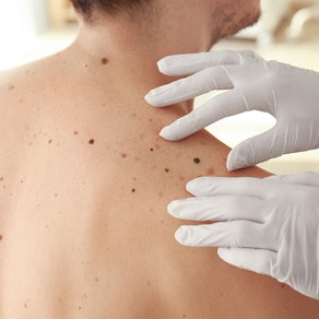 Dermatologist looking at someone's moles How Often Should You Be Seen for Skin Cancer Prevention?