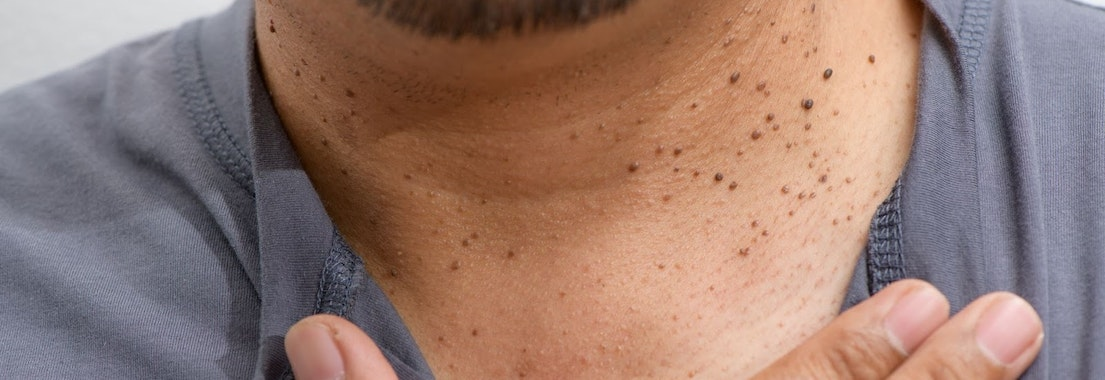 When Should I Have a Skin Tag Removed?