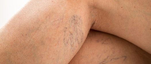 Spider veins on someone's calf How to Treat Spider Veins Before Swimsuit Season