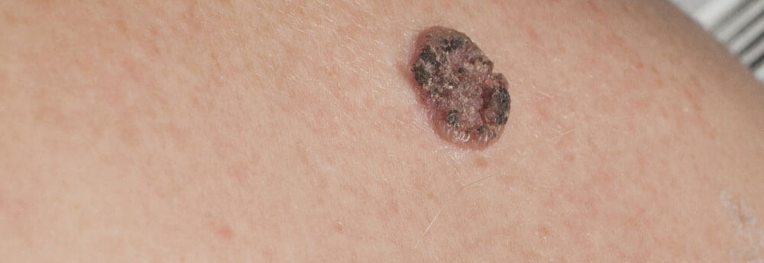 Diagnosing Skin Cancer Spot The Warning Signs Of North Pacific