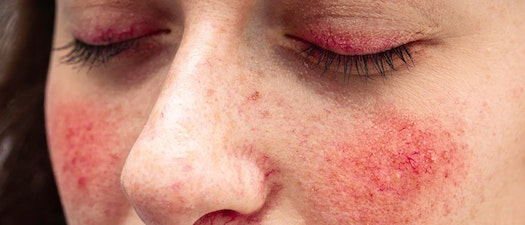 How to Protect My Skin in the Summer with Rosacea