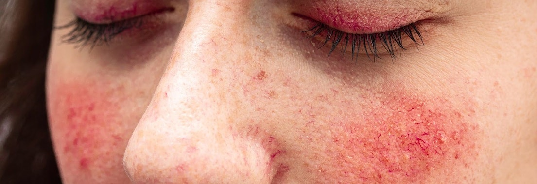 Woman with rosacea How to Protect My Skin in the Summer with Rosacea