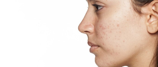 Woman with acne on her face How to Treat Acne Prone Dry Skin This Winter