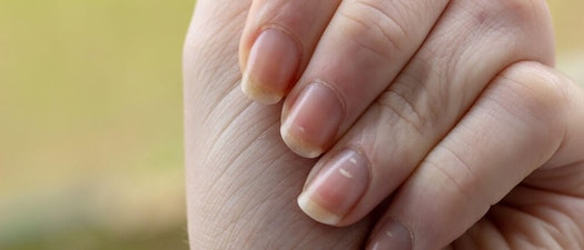 How Your Dermatologists Treats 4 of the Most Common Nail Abnormalities