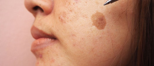 Brown spots on a North Pacific Dermatology patient's face 3 Treatment Options for Melasma and Brown Spots
