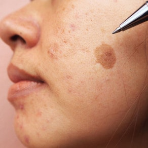 3 Treatment Options for Melasma and Brown Spots
