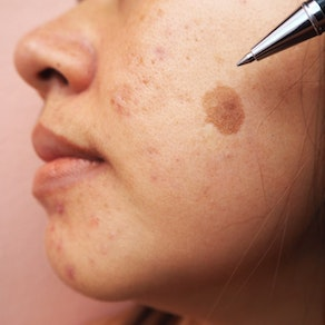 Unwanted Pigmentation? Enjoy Clear Skin with Laser Therapy
