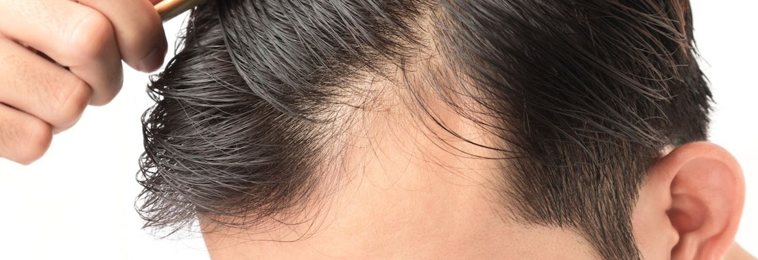 How Old Should I Be Before I Start Noticing Hair Loss?