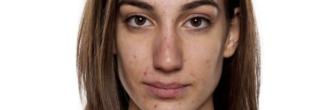 What Could Be Causing Your Adult Acne?