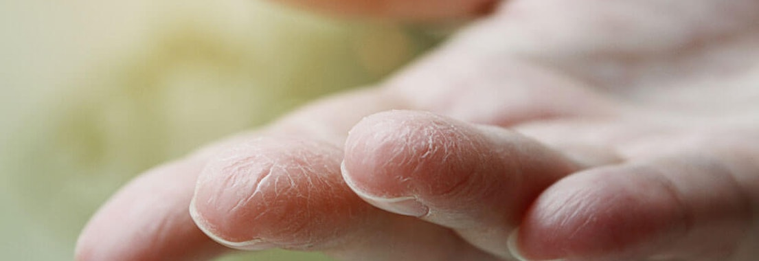 Dry fingers in the winter Winter-Proofing Your Skin