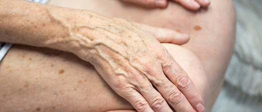 Do Your Hands Make You Look Old?
