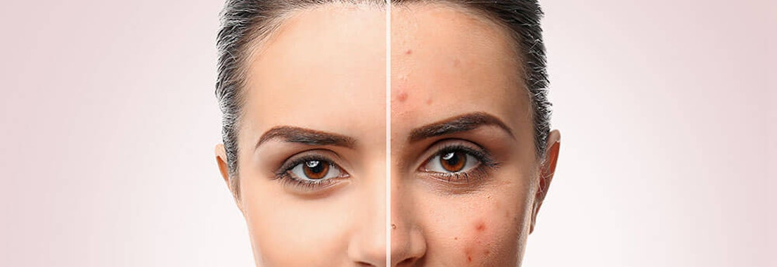 How Can Your Dermatologist Treat Your Acne?