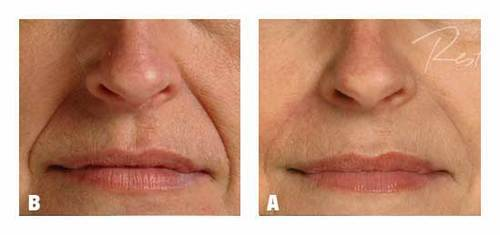 Close up of face before and after applying Restylane