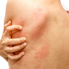 Person scratching at hives on their back Can Hives Be a Sign of Something Serious?