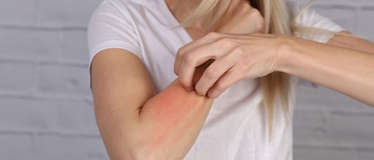 Woman scratching at broken out arm How Allergies Affect Your Skin