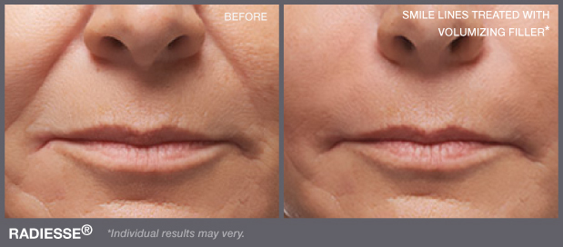 Woman's face before and after Radiesse