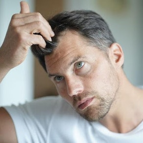 Is Hair Restoration Right for Me?