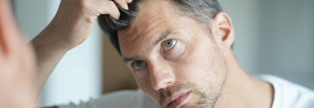 Man feeling his scalp Is Hair Restoration Right for Me?