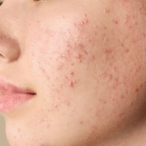 Acne on someone's face Adolescent Acne vs. Adult Acne