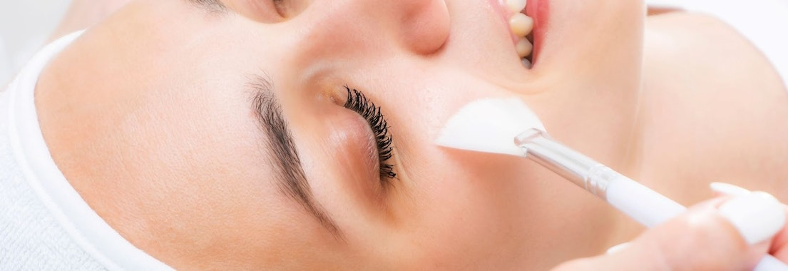 Chemical peel treatment Why Chemical Peels Are Safe and Recommended in the Winter