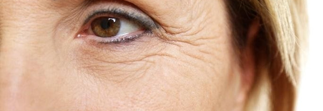 Woman with wrinkles around her eyes Do Creams Really Reduce Wrinkles? Ask the Experts