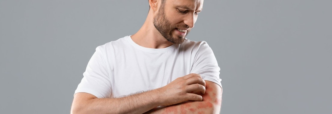 Man scratching at eczema on arms How to Dress While Dealing with Eczema