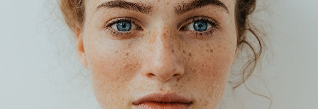 Woman's face with freckles Can You Really Get Rid of Freckles?