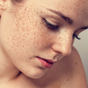 SE Dermatology Specialists freckle skin treatment How to Combat Freckles