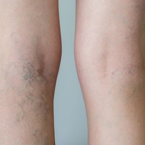 How to Treat Spider Veins Before Swimsuit Season