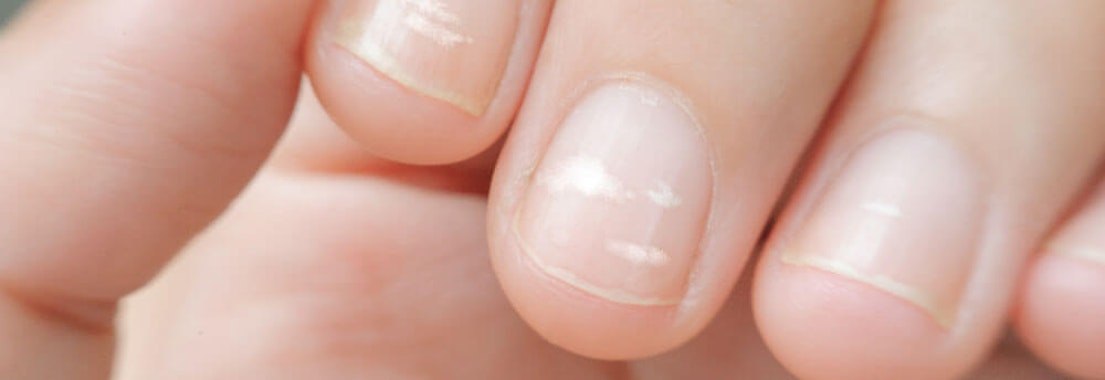 Can You Treat These 5 Common Nail Abnormalities at Home?