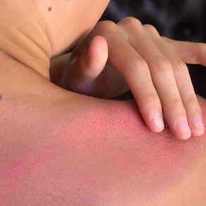 Person with sunburn on their shoulder Remember Your Sunscreen This Spring Break. Here's Why.