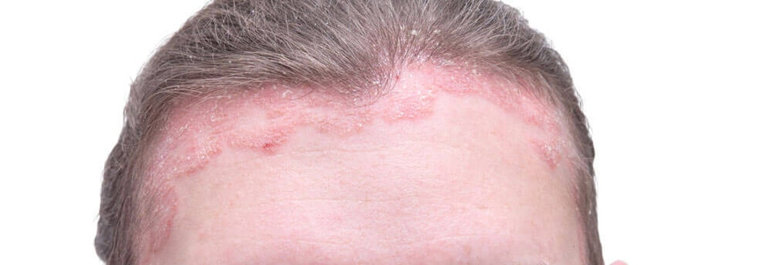 Psoriasis on the forehead Do Over-the-Counter Shampoos Effectively Treat Scalp Psoriasis?