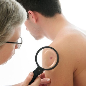 Skin Cancer Awareness Month: What Can Happen If Your Skin Cancer Goes Untreated?