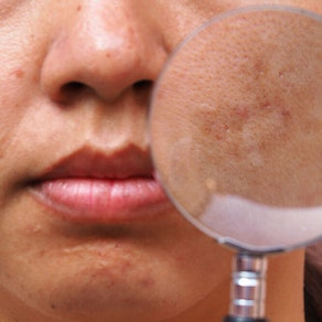 Treating Melasma and Brown Spots