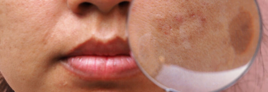 SE Dermatology Specialists melasma brown spot treatment Treating Melasma and Brown Spots