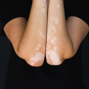 What Everyone Should Know About Vitiligo