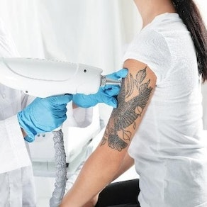 Tattoo Removal Before Swimsuit Season