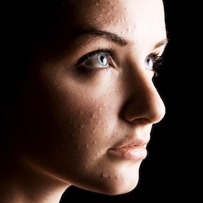 Woman with acne breakout I'm Not a Teenager. How Am I Still Getting Acne?