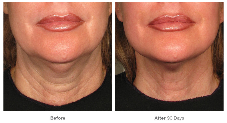 Close up of woman's face before and after Ultherapy