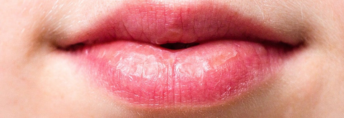 Woman with dry and chapped lips 4 Tips for Preventing Dry, Chapped Lips