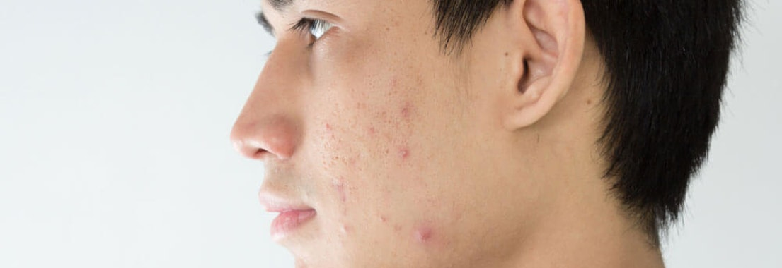 Is Acne Affecting Your Mental Health?