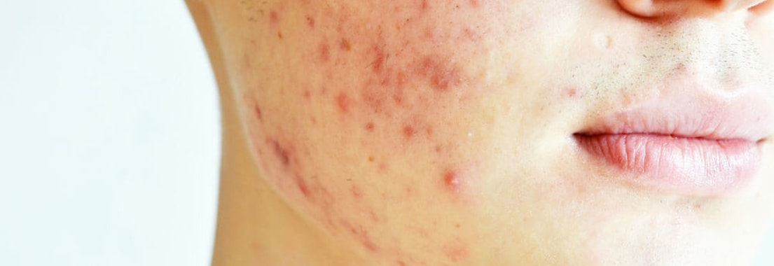 Can You Prevent Adult Acne?