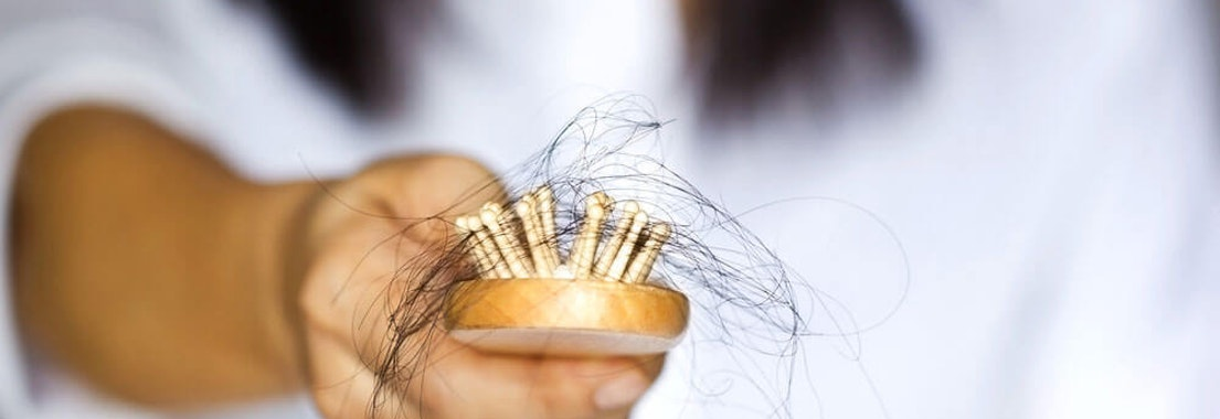 Is Your Hair Loss Normal, Or Do You Have Alopecia?